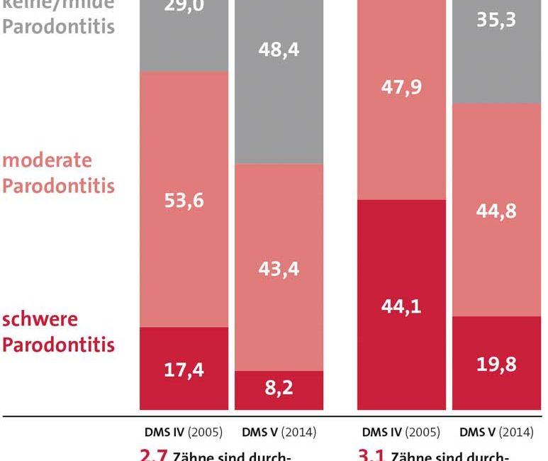 Weniger Parodontalerkrankungen in Deutschland – trotzdem stärkere Prävention notwendig